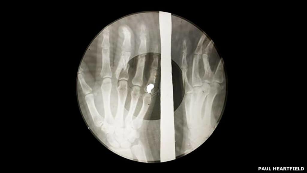 150129134625_x-ray_audio_bones-slide-49-2