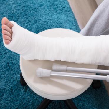 На какую помощь вы (не) можете рассчитывать от государства и NHS, если сломали ногу