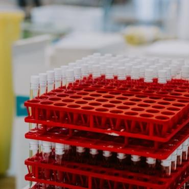 Жители Британии, заразившиеся коронавирусом, теперь смогут сдать тест на антитела