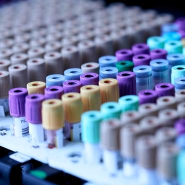 Несрочные анализы крови в Британии отложат из-за проблем с поставками пробирок